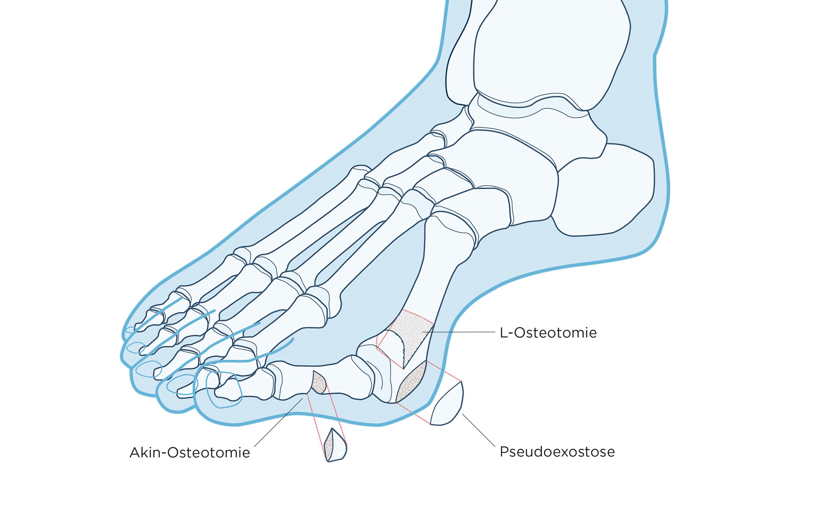 L Akin Osteotomie Schritt 1