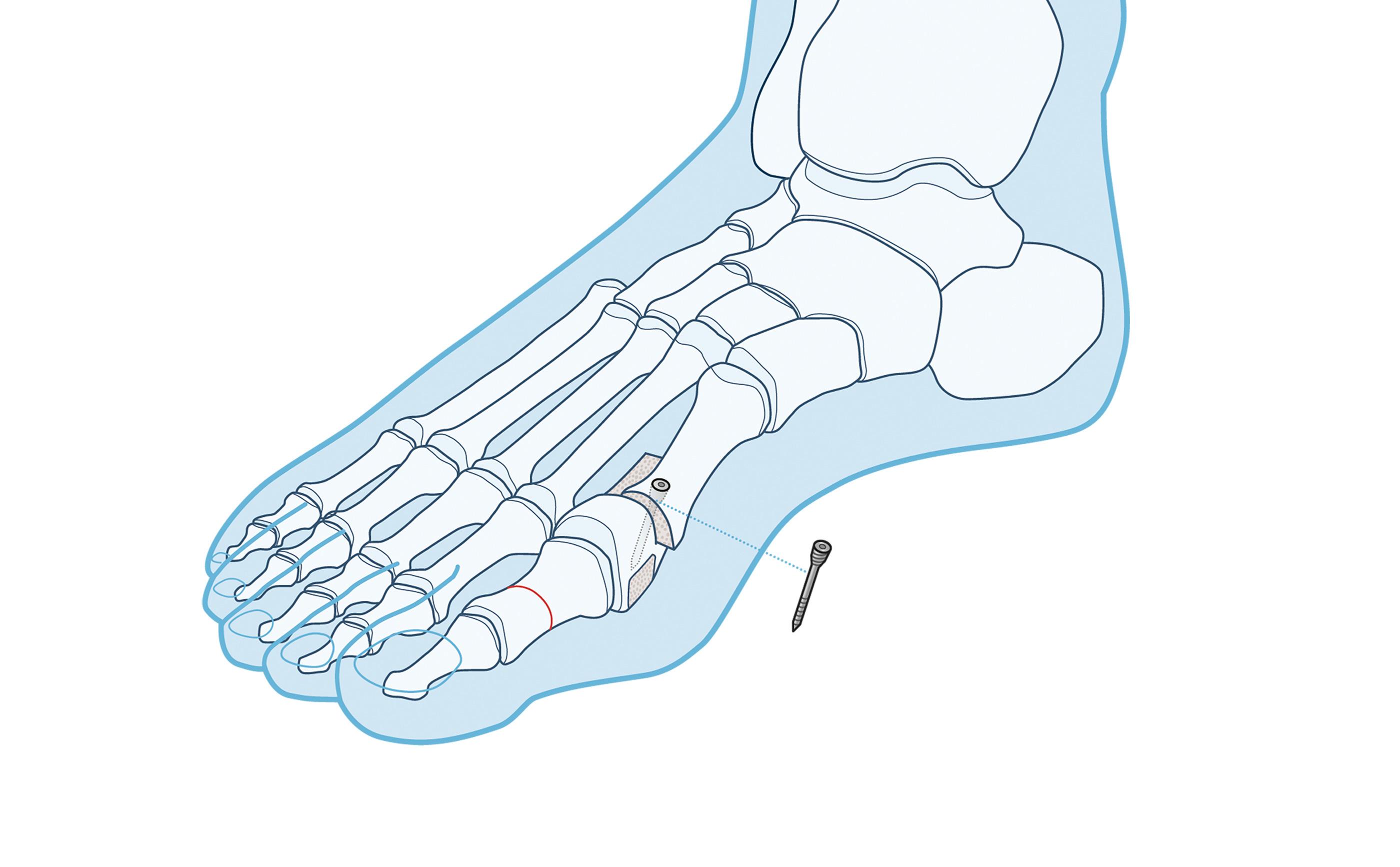 L Akin Osteotomie Schritt 2
